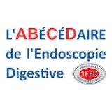 Abécédaire de l'Endoscopie Digestive
