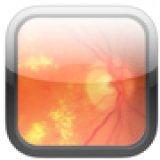 Algorithm for management of diabetic macular edema